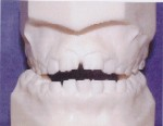 Openbite - Occlusion - Orthodontist in Dallas, TX