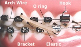 Orthodontic Terms - Orthodontist in Dallas, TX